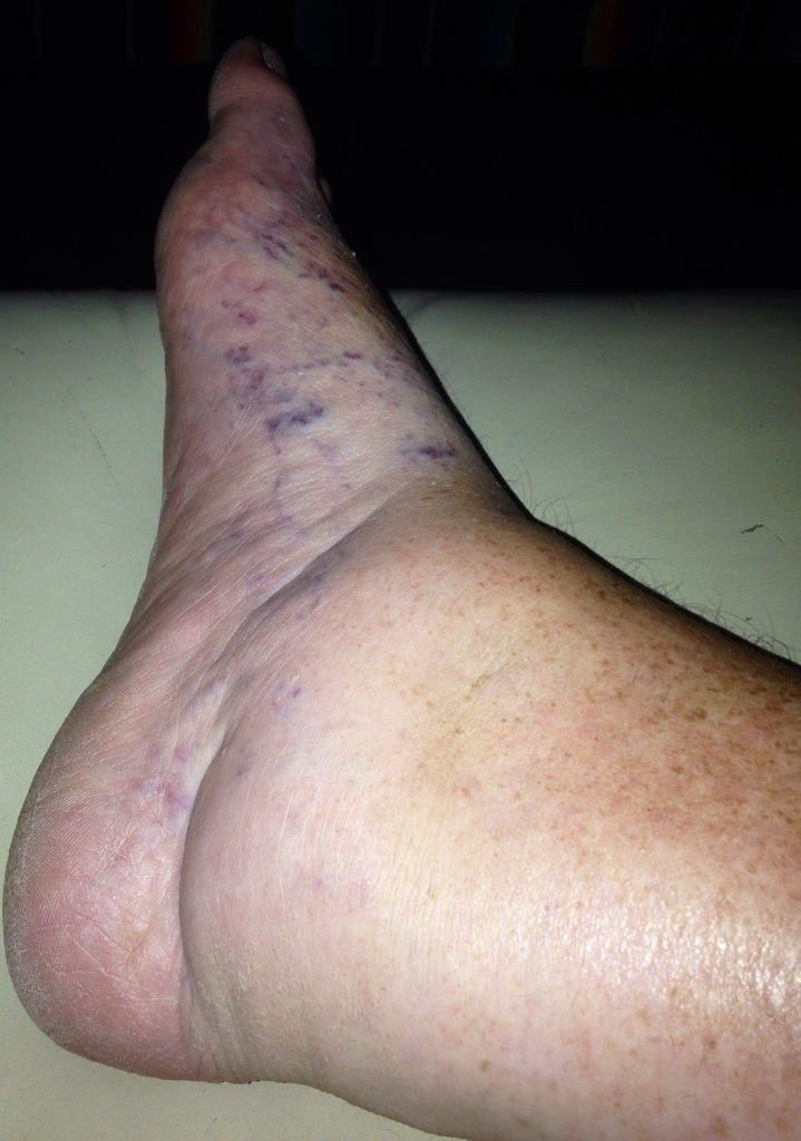 When I squeeze my foot, about half of the thickness is from edema.