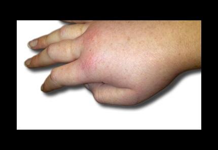 angioedema hand
