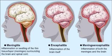 brain-fever