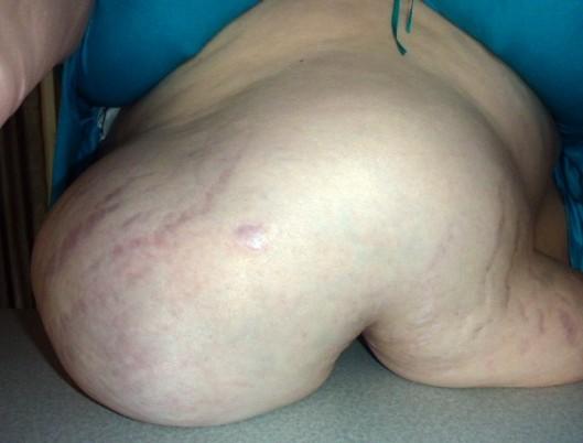 gigantic hernia