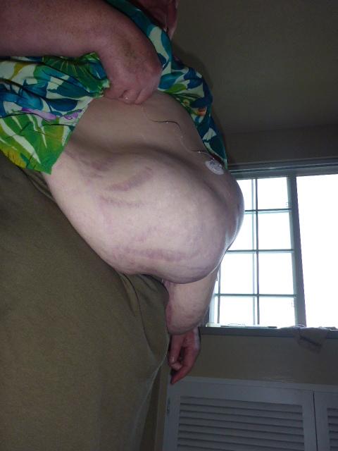 hernia-underneath