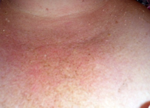 skin-bumps