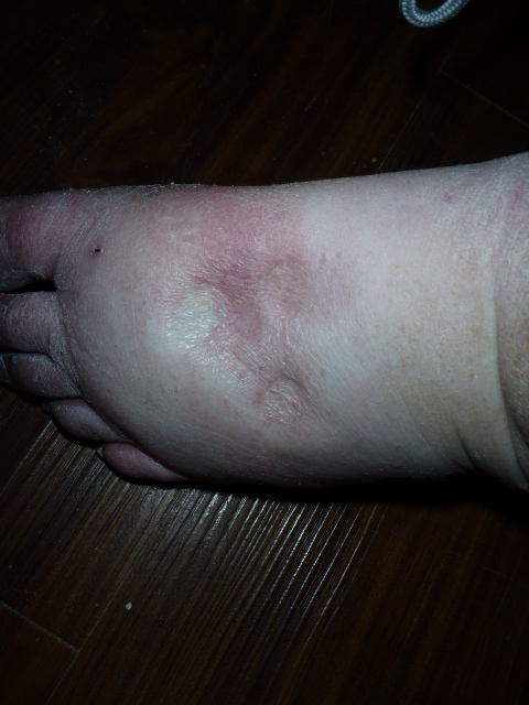 swollen-left-foot