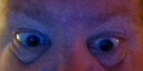 weird-eyes
