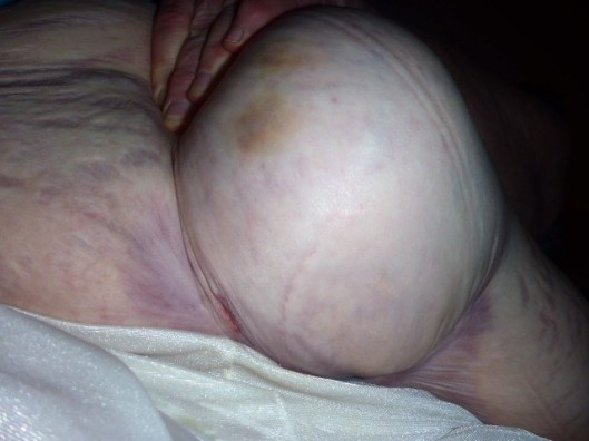 hernia-ball