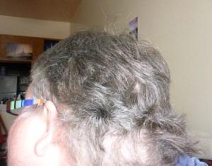 swollen-head-neck