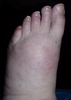 bloody-little-toe