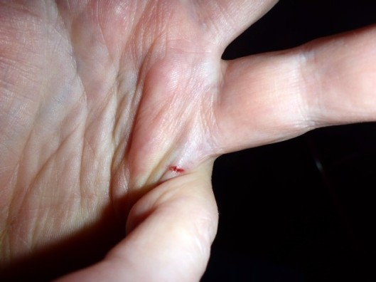 cut-between-fingers